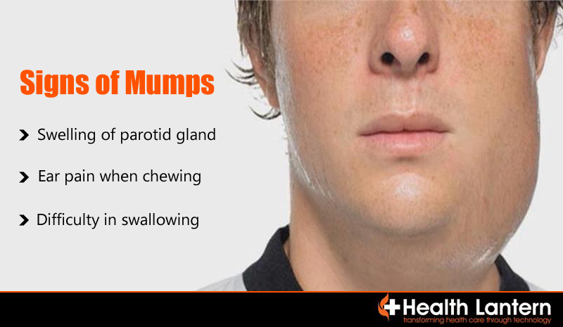 Magnificent Mumps immunization as adult agree, this