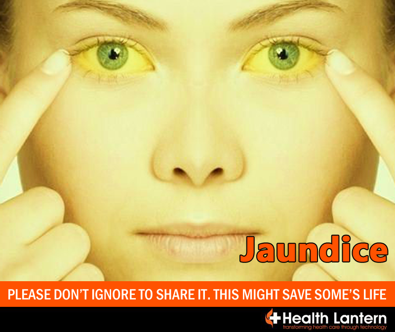 How To Cure Yellow Eyes Naturally